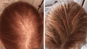iRestore Anti-Hair Loss Shampoo Review - Safe To Use?