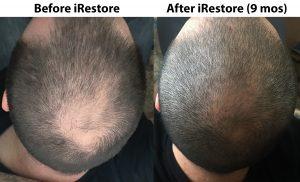 iRestore Anti-Hair Loss Shampoo Review