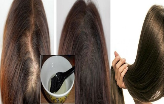 Hair Revital X Formula - Does It Really Work?