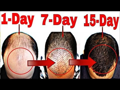 Hair Revital X Results