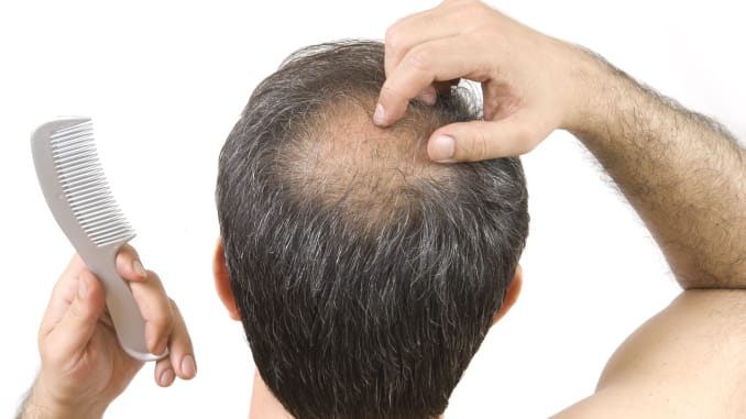 HairFortin Review - The Best Hair Loss Solution