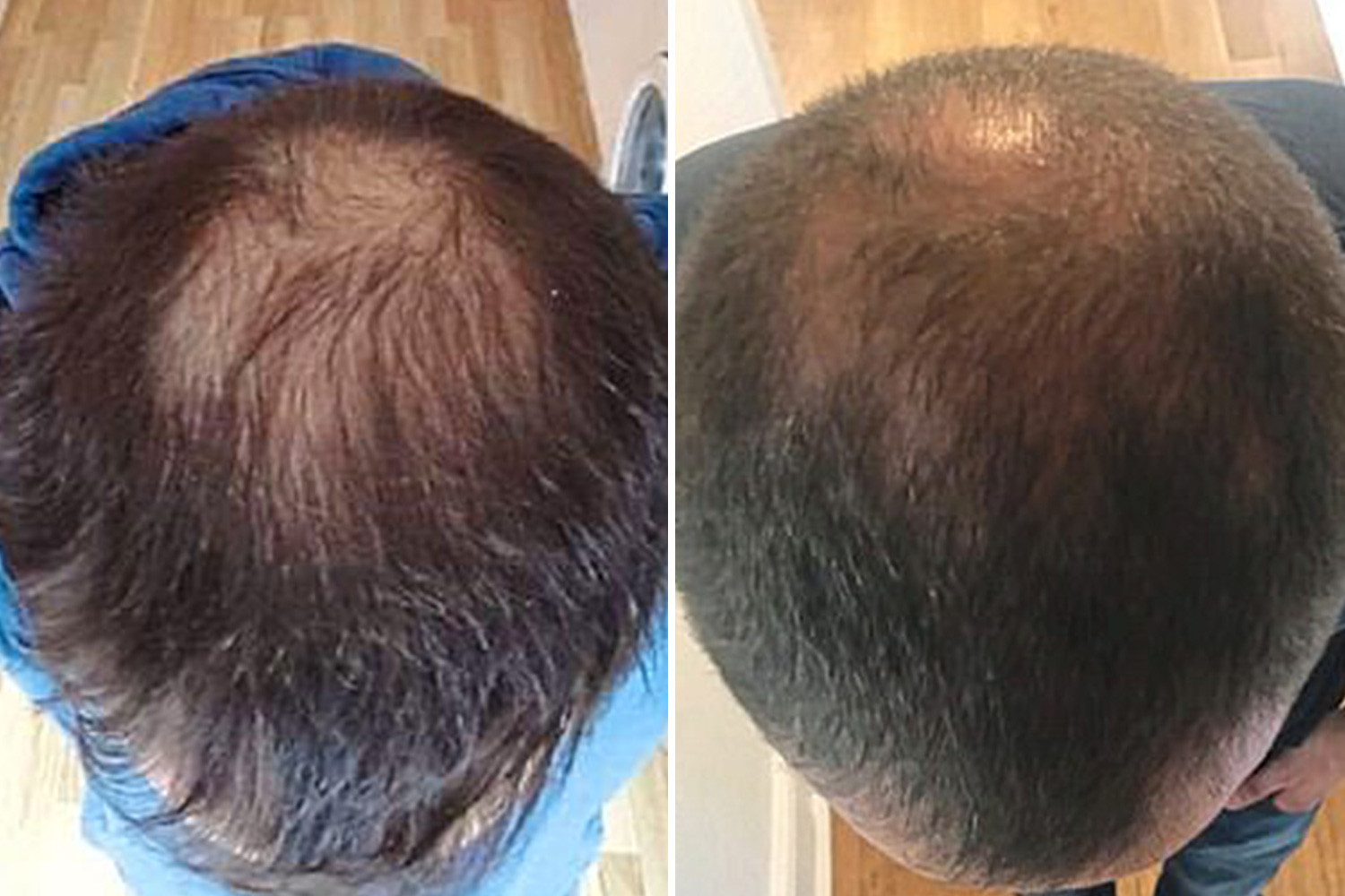 HairFortin Supplement Reviews - Check Out Its Before And After Results!