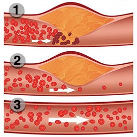 HFL Blood Flow Optimizer Ingredients