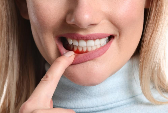 Denti Strength Supplement Reviews - Any Side Effects? My Results