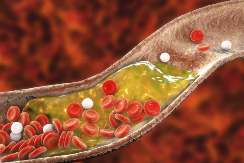 Scott Davis The Oxidized Cholesterol Strategy Program