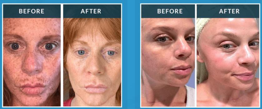 Admire My Skin Trifecta Glow System Serum