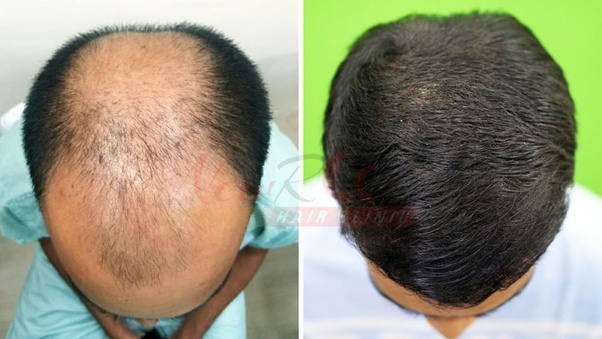 follicle Revival User Review